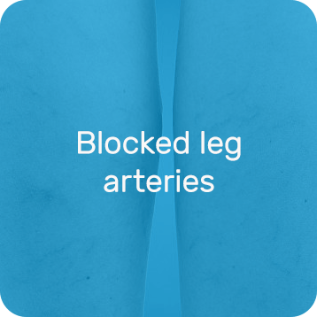 Blocked leg arteries