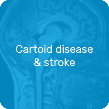 Cartoid disease & stroke